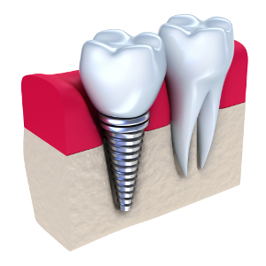 http://www.orchidental.pl/wp-content/uploads/2015/11/dental-implant2.jpg